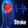 How to prevent strokes from happening?