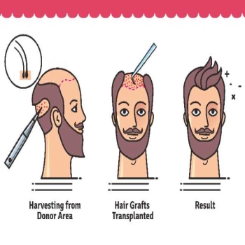 FUT Method of Hair Transplant Treatment in Islamabad