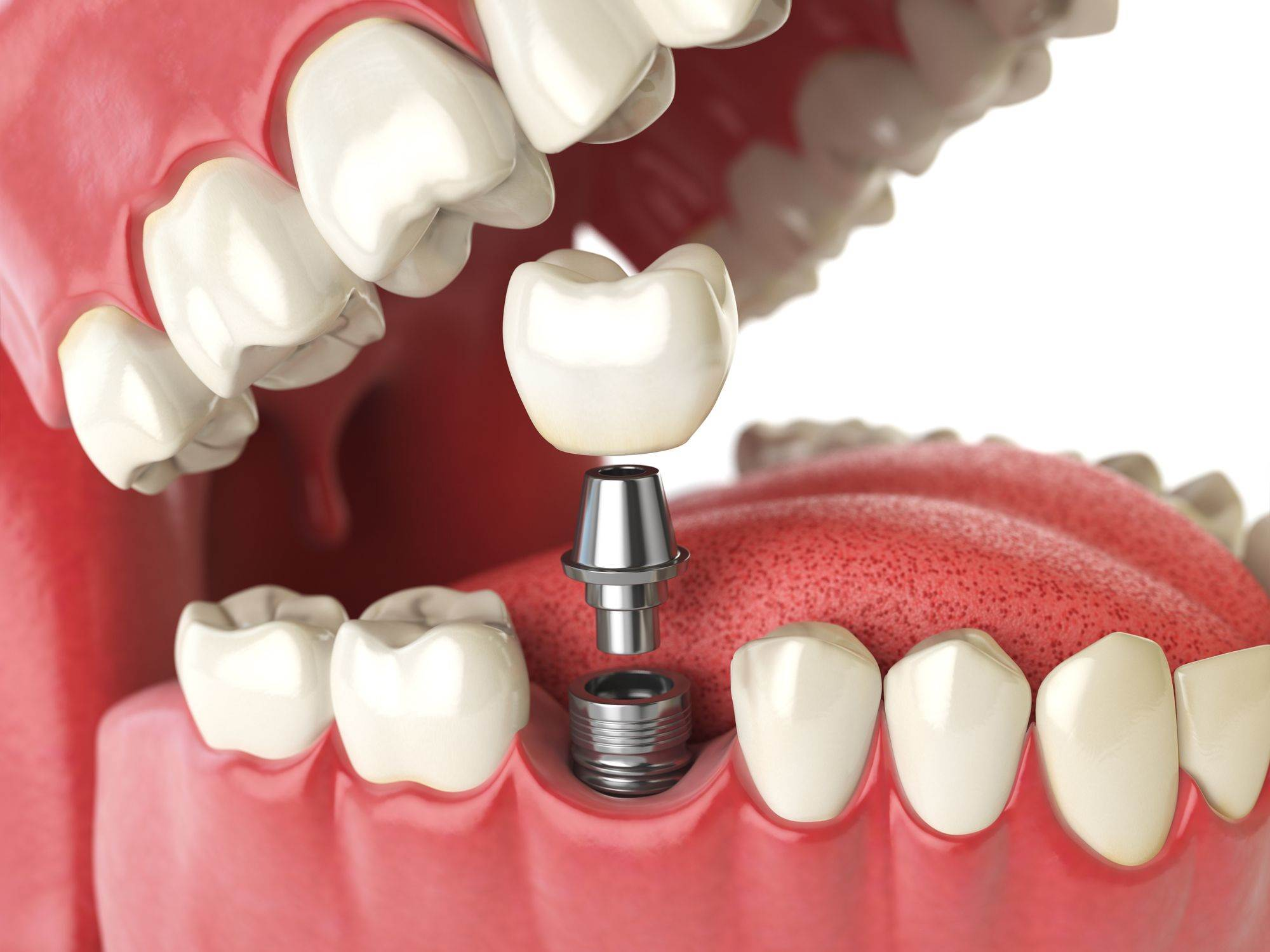 10 MAJOR BENEFITS OF DENTAL IMPLANTS
