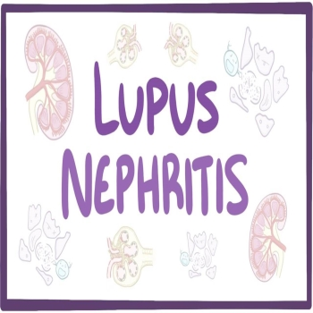 Lupus Nephritis: Symptoms, Diagnosis, and Treatment