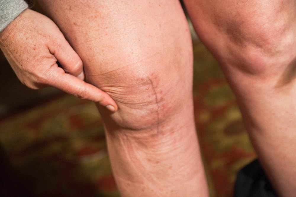 What are the signs of knee arthritis?