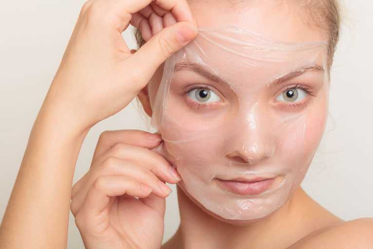 Melasma Treatment with Chemical Peels
