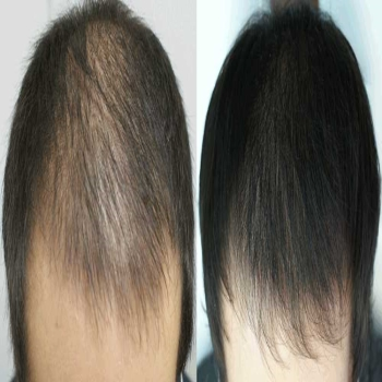 Best FUE Hair Transplant Treatment in Islamabad