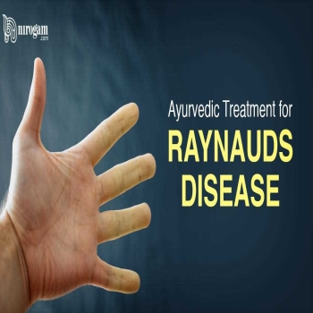 Reynaud's disease and its symptoms