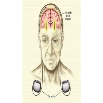 Brain Pacemaker for Parkinson's Treatment