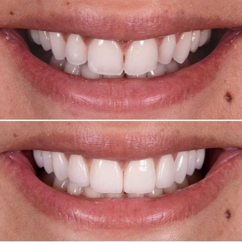 Want to Beam a Perfect Smile Braces can help you out!