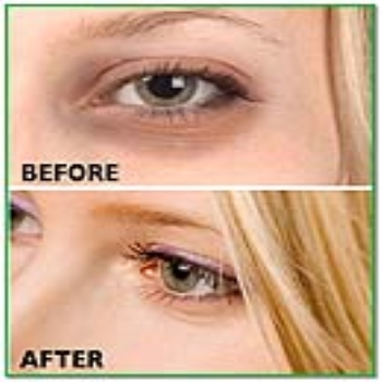 Remove dark circles with the help of Ayurvedic treatment