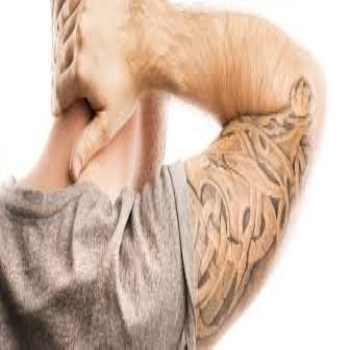 tattoo laser removal melbourne