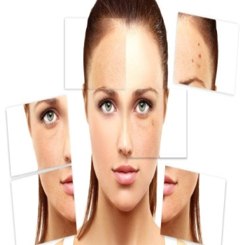 Causes Of Melasma