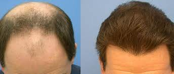 PRP hair treatment in Dubai