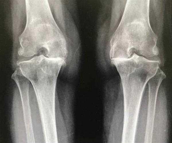 Osteoarthritis – Is it just a degenerative process?
