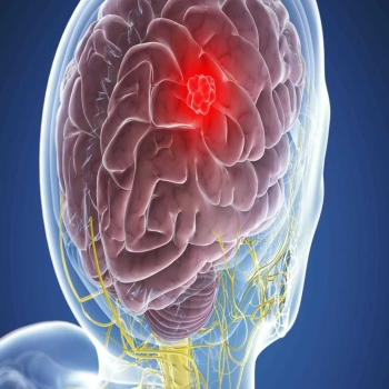 What Is The Survival Rate After Meningioma Treatment?