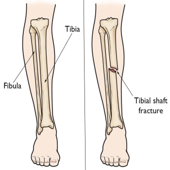 An analysis of Clinical Experience with Closed Tibia Fractures