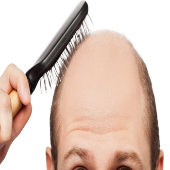 10 myths to debunk about hair transplants