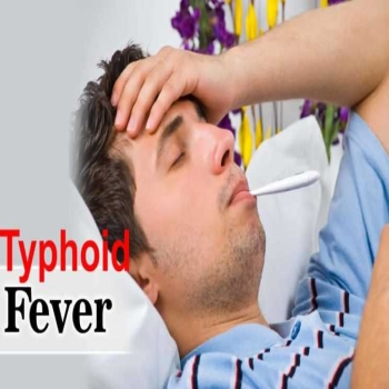 Typhoid fever- Causes, Symptoms, and Treatment